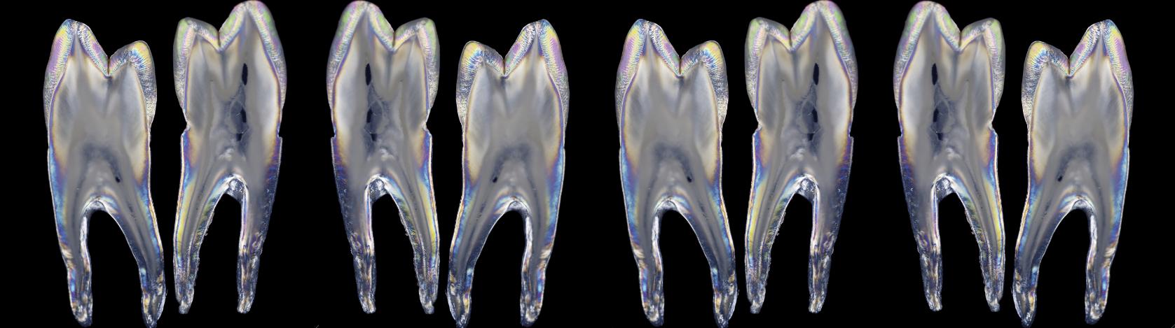Zahnarzt Hamm Detox dentistry 001